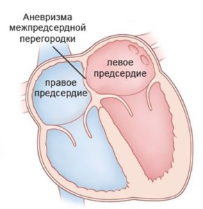 anevrizma-mezhpredserdnoj-peregorodki