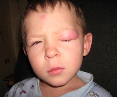 аллергия у детей на укусы комаров фото