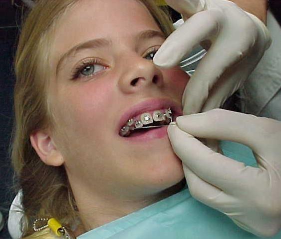 Как сделать скобы с зубами