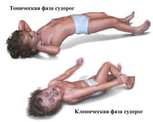 Эпилептические приступы - симптомы болезни