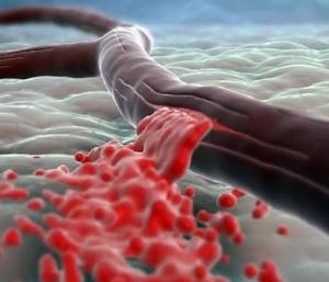 Кровоизлияния в органы - осложнения болезни