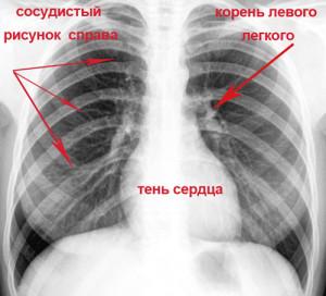Рентген как метод диагностики болезни