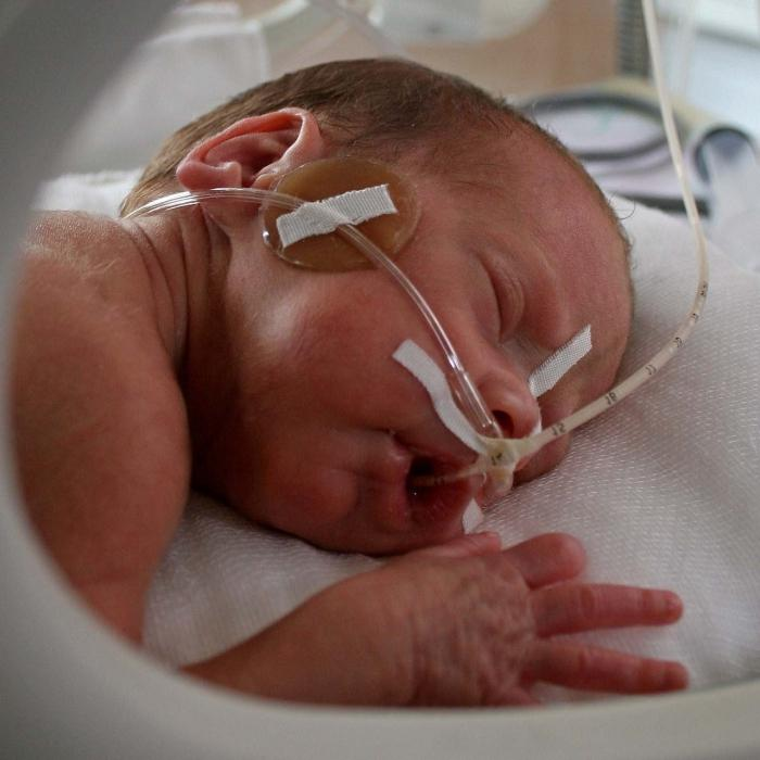 гипоксия у новорожденного что это такое фото