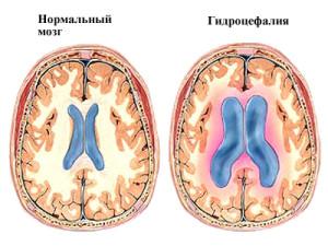 Гидроцефалия - одна из причин повышенного ВЧД