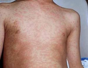Инфекционная сыпь