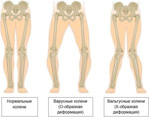 Вальгусная деформация колени