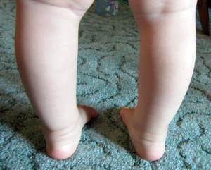 Варусная деформация стопы