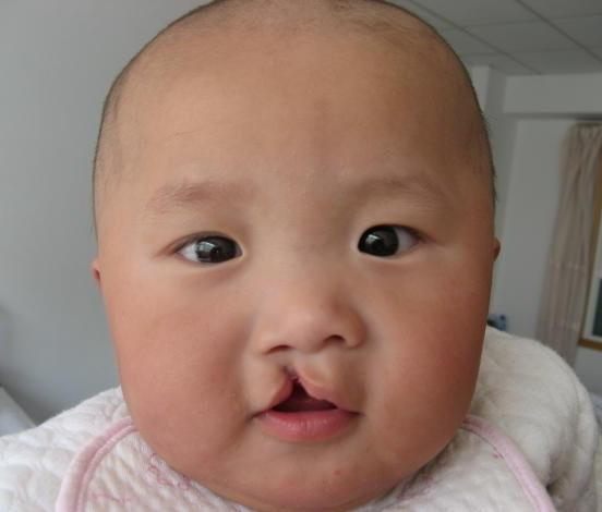 стикеры на лицо ребенка фото