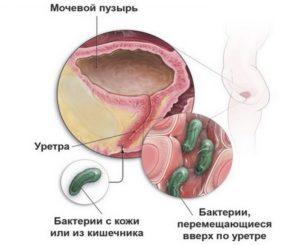 Инфекционные болезни мочевыводящих путей
