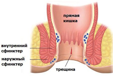 полисорб при аллергии