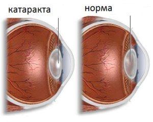 Передняя полярная катаракта