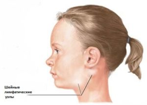 Симптомы лимфаденита