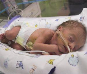 Пневмония после ИВЛ у новорожденного
