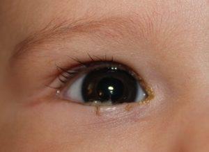 Закисают глазки у новорожденных