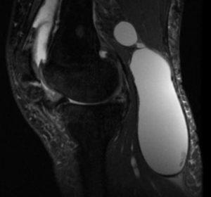 Киста Бейкера на рентгеновском снимке