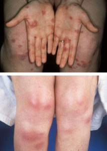 Эритема на руках и ногах
